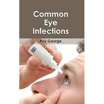 Infections oculaires courantes par George & Ray
