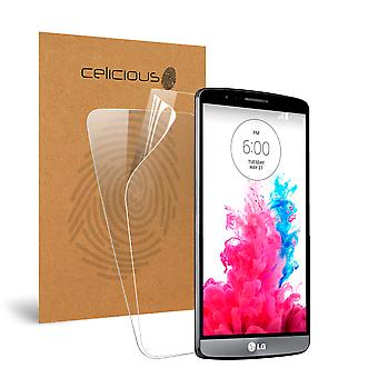 Celicious Vivid Invisible Glossy HD Screen Protector Film Compatible with LG G Vista [Pack of 2]