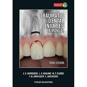 Lesões traumáticas dentárias: Um Manual