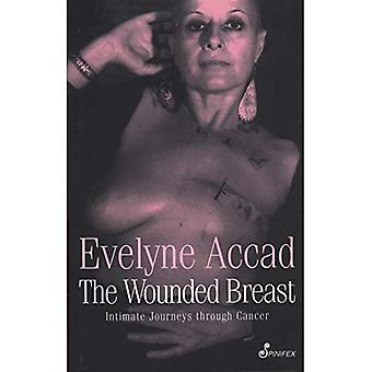 The Wounded Breast : Intimate Journeys Through Cancer