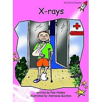 Röntgen: Före läsning (röd raket läsare: Fiction uppsättning A)