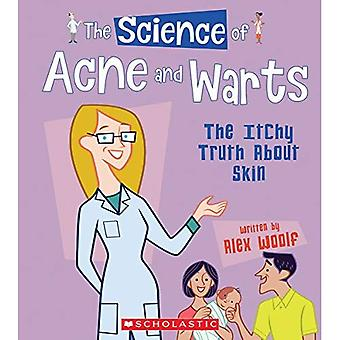 The Science of Acne and Warts: The Itchy Truth about Skin (Science of the� Body)