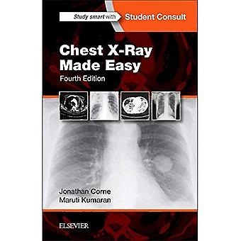 Chest X-Ray Made Easy, 4e