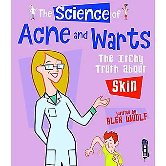 The Science of Acne & Warts: The Itchy Truth About Skin (The Science Of...)