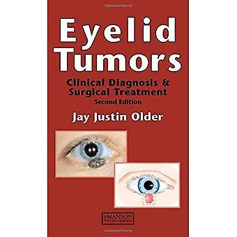 Øyelokket svulster: Klinisk diagnose og kirurgisk behandling